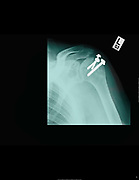 Shoulder X-ray of a 68 year old patient surgical screw can be seen attaching the dislocated shoulder