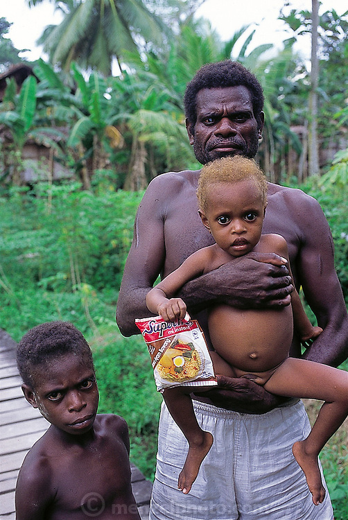 Asmattan family displaying processed food, one of the results of a government logging initiative that has put cash in the pocket of a people unfamiliar with a monetary system, Sawa village, Irian Jaya, Indonesia. The father is blind in one eye due to a disease common to the area brought about by vitamin deficiencies. (Man Eating Bugs page 75 Bottom)