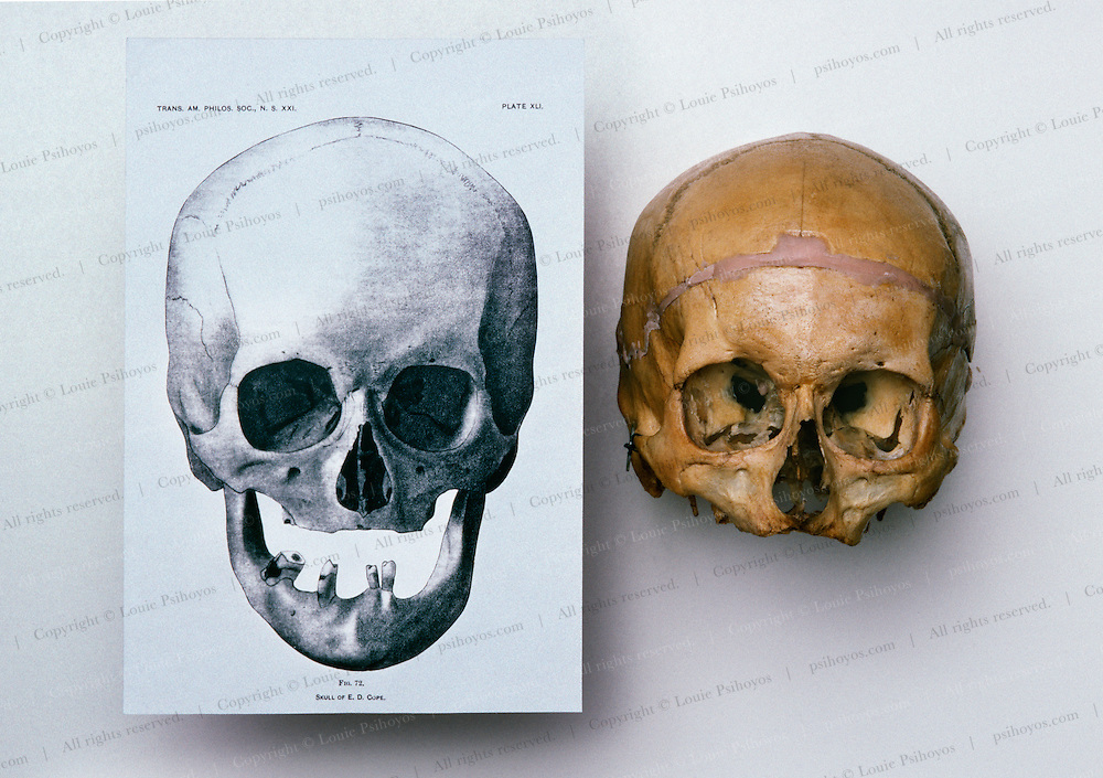 A knob-headed Philadelphia Inquirer reporter claimed without substantiation that the skull I had was not the professor's.  This drawing made of Cope's skull at the time of death cleared the record.  The head S.F. coroner concurred.