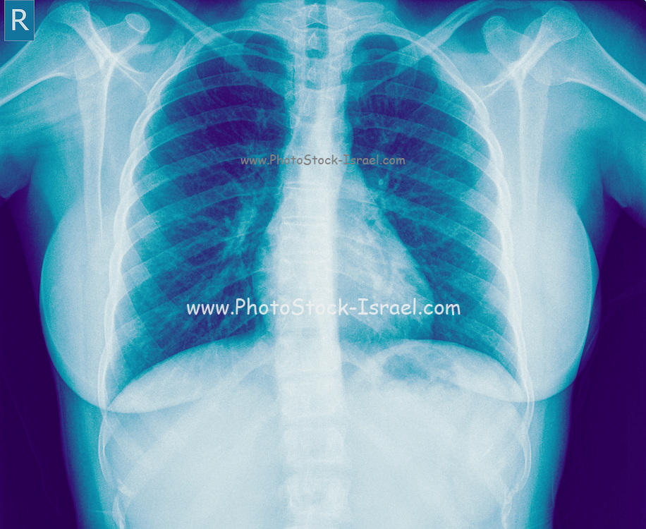 Chest x-ray of a 27 year old female suffering from Bronchitis. front view