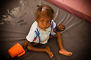 Child in the therapeutic feeding center of the Magbenthe hospital in Makeni, Sierra Leone, on Friday February 27, 2009. UNICEF sponsored some of the construction of the facilities, and also provides high-protein biscuits and milk as part of a joint effort with the World Food Programme..