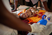 Doctors at Médecins Sans Frontières (MSF - Doctors Without Borders) are trying to reanimate Marhazu Sa'adu, 9 days old, a child suffering from blood lead level of 49.6 micrograms per decilitre, tetanus and septicaemia, inside the MSF clinic in Anka, Zamfara State, Nigeria. Marhazu passed away within the day. The MSF facility handles serious cases of lead poisoning referred to them by local clinics in the surrounding villages. It is mainly caused by ingestion and breathing of lead particles released in the steps to isolate the gold from other metals. This type of lead is soluble in stomach acid and children under-5 are most affected, as they tend to ingest more through their hands by touching the ground, and are developing symptoms often leading to death or serious disabilities. The treatment with MSF starts when blood lead level (BLL) samples reach 45 micrograms per decilitre. The Centers for Disease Control and Prevention (CDC) states that a BLL of 5 ?g/dL or above is a cause for concern. The cycle of medicines lasts for 20 days. After that, the child's blood is tested and a new round of treatment is provided. Treatment can last years, as lead is reduced in the blood, but it persists noticeably within the bones, especially if the patients return to the same polluted environment. Remediation of the affected villages, a campaign of awareness, and the introduction of safer mining techniques are pivotal to the long-term solution of a hazardous trend that has already killed over 460 children, and it is bound to grow in size, alimented by the ever-rising price of gold.