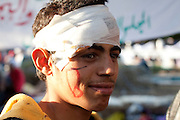 Tunis, Tunisia. January 26th 2011.One of the young protesters after violent clashes with the police near the Casbah..He is one of those who spent two nights (in defiance of a curfew) in front of the Prime Minister's office (Mohammed Ghannouchi) on the Kasbah Square. They demand the removal of Mohammed Ghannouchi and members of the ousted president's regime (Zine El Abidine Ben Ali) still in the the government. ....
