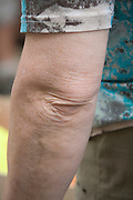 elbow of an elderly woman