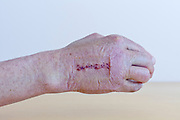 recovering wound after operation on the broken third metacarpal bone in the hand with imprint of the first aid bandage