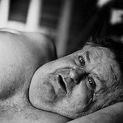 Hughie MacInnis, a paralyzed shaft miner lying in his bed.  Hughie was paralyzed from the chest down following a shaft accident at Stobie Mine in 1975, Sudbury, Ontario. From the book Cage Call: Life and Death in the Hard Rock Mining Belt. An in-depth project spanning over 12-years examining communities in one of the richest mining regions in the world located in Northwestern Ontario and Northeastern Quebec in Canada.