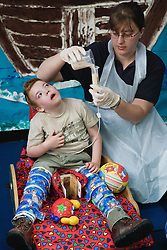 Boy with cerebral palsy being tubefed,