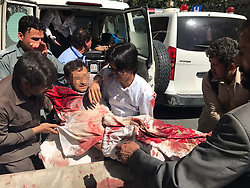May 31, 2017 - Kabul, Afghanistan - An injured man is being transferred to hospital in Kabul, Afghanistan. A powerful car bombing rocked a diplomatic district in the central part of Afghanistan's capital of Kabul on Wednesday morning, leaving casualties and damage, sources and witnesses said.  (Credit Image: © Rahmat Alizadah/Xinhua via ZUMA Wire)