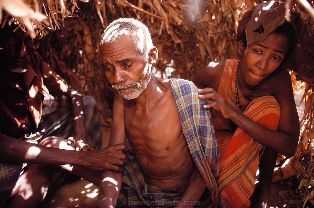 A sick, starving man in a refugee camp near Merca, 100 km. South of Mogadishu, war-torn capital of Somalia. March 1992.