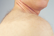 neck and skin of man