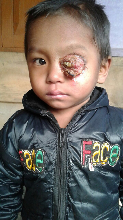 """EXCLUSIVE: By Dinesh Dubey in India Something that started as a small white dot in the eyeball of three-year boy six months ago, has now gone on to cover his entire left eye and put his life at risk. Keffrien Reang who hails from Dhalai district of north Indian state of Tripura, has been diagnosed with retinoblastoma, a cancer that starts in the retina, the very back part of the eye. His poor parents are unable to bear the expenses of his treatment. Sanjit Reang (35), a small-time farmer who makes around Rs 4000 every month, and finds it difficult to support a family of five - his wife and three children. The disease started with a small white dot in the eyeball some eight to nine months ago. His parents took him to local doctors and """"My second son has been diagnosed with ratinoblastoma last year. I know his condition is getting worse by the day, but I am not able to do anything for him,"""" says Reang. Around a year ago, they spotted a small off-white spot on the eyeball. The family initially thought it is a minor problem and ignored it thinking that the spot would go away on its own. But when the problem started to get worse, they took him to the local hospital. The doctors prescribed some ointments and medicines and sent them back, assuring that the problem would be solved. As time passed by, the problem started to worsen. """"It was then we decided to take him to Agartala medical hospital. The boy was then referred to the regional cancer hospital and from there the boy was referred to another facility but nobody could give a proper diagnosis,"""" says Reang. After a month-long diagnosis, the Agartala facility referred them to Regional Cancer Hospital in the same town. From there, they referred him to Shankar Netralaya in Guwahati in the neighbouring state of Assam. In the end, doctors at Dr B Barroah Cancer Institute, Guwahati, diagnosed that the boy has a retinoblastoma in the left eye. But the family couldn't go ahead with his treatment as they couldn't afford"""