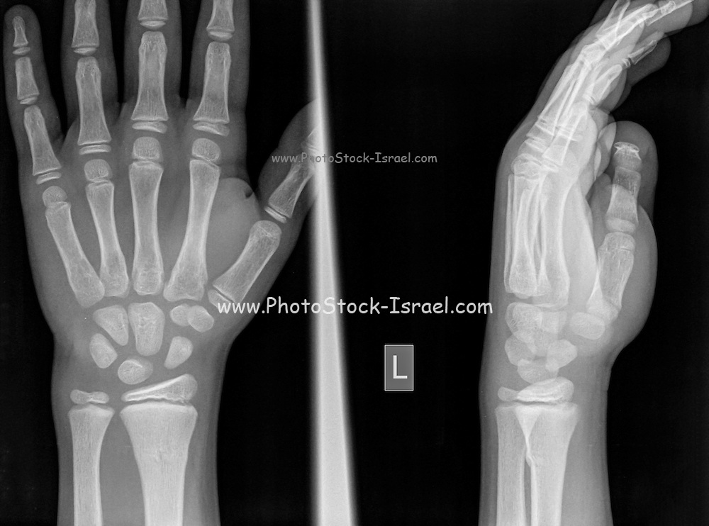 wrist of a 9 year old male patient with a Distal Radius Fracture