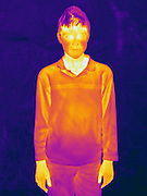 A Thermogram of a young boy outside in winter. The different colors represent different temperatures on the object. The lightest colors are the hottest temperatures, while the darker colors represent a cooler temperature.  Thermography uses special cameras that can detect light in the far-infrared range of the electromagnetic spectrum (900?14,000 nanometers or 0.9?14 µm) and creates an  image of the objects temperature..