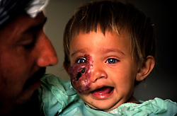 KABUL 06 August 2005..Shabana, a nine-months old Afghan girl, with her father Janat Ghul.