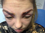 'I looked like a monster': Teen model burnt and swollen following eyebrow tint now faces permanent scarring<br /> <br /> These days it's no big deal for most young women to pop into a beauty salon for a quick treatment to keep up their polished appearance.<br /> But for Beautiful Harleigh Kay, 17, a drop-in salon appointment ended disaster when was rushed to hospital with burns and was unable to open her eyes after getting her eyebrows tinted.<br /> The parents of the young model are now campaigning for better safety regulations in the beauty industry after their daughter could be left permanently scarred.<br /> Harleigh was left in agony and her eyebrows were weeping with a pus-like substance following the beauty treatment at American Nails salon in Luton.<br /> At hospital, she had to be fed a cocktail of medication to combat the reaction. She was intravenously-fed steroids and antihistimines as well as a strong course of antibiotics.<br /> Harleigh, who studies hairdressing at Barnfield College, recounted her ordeal: 'I looked like a monster and it was hideous. I didn't recognise myself in the mirror and I was horrendous to look at. It left me feeling traumatised.<br /> 'The pain was excruciating and the discharge was weeping into my eyes. It felt like my whole face was on fire. I couldn't see properly and doctors told me I couldn't drive or do anything other than stay at home.'<br /> The teenager, who has modelled for MOT Berkshire since the age of four, said she popped into the salon for a quick treatment before meeting a friend.<br /> 'It's quite upsetting to think I could be left with scars. I just wanted to treat myself to a little treatment but instead it's been a disaster,' Harleigh explained.<br /> 'Modelling is something I've done whilst growing up and I love it. I'd like to continue to do it, but this could jeopardise it.'<br /> Harleigh, who is currently on a break from modelling to focus on her studies, came out of the shop looking a bit red, but by t