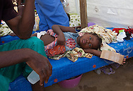 Young girl receiving treatment at a cholera treatment clinic run by Sumaritan's Purse in Cabaret. Samaritan's Purse clinic in Cabaret has 80 beds. Cholera clincis run by NGO's are the main source of care for patients with cholera.