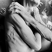 Blayne Kinart's arms and ribs where scars from his lung surgery for Mesothelioma can be seen.  58-year-old Blayne Kinart a former chemical worker who died from Mesothelioma, a cancer associated with asbestos exposure in Sarnia, Ontario. Residents of the area have nicknamed Sarnia ?Chemical Valley?, due to the large number of chemical plants operating in the area. Blayne passed away on July 6, 2004.