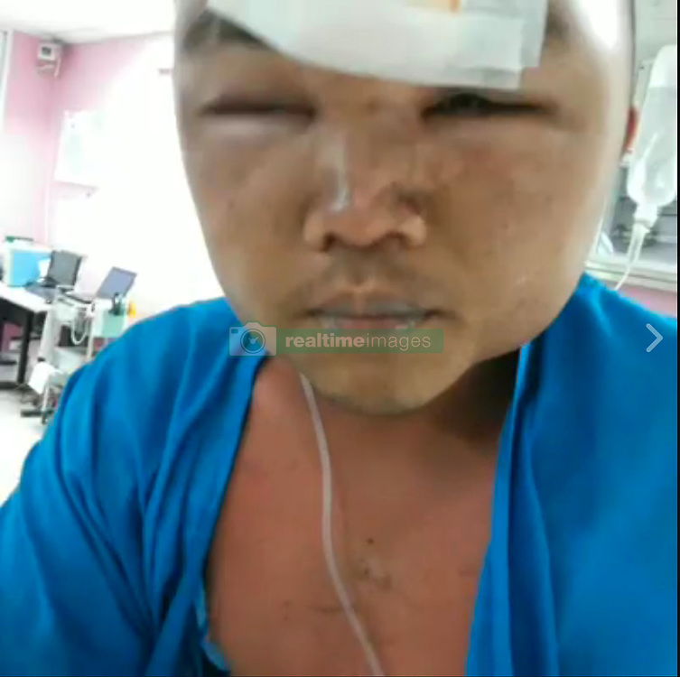 """SHOCKING images show soldier after he was beaten by colleagues and later died of his injuries...An Army conscript has been beaten to death at Vibhavadi Rangsit Military Base in Surat Thani after violating military rules, it was reported in the social media on Saturday. ..Private Yuthinan Boonniam was hospitalised with a swollen face and bruises before his death early on Saturday...Facebook user """"Bom Lung Lang"""" shared his pictures, with a caption saying that the young man was imprisoned in military jail for violating military rules and that he was severely beaten...It was further reported that Yuthinan seriously suffered from injuries of his internal organs. The medical team performed cardiac resuscitation four times but failed to save his life. He passed away at 5 am on Saturday...Yuthinan was not the first serving conscript to be beaten to death. In April last year, Private Songtham Mudmad was beaten to death at a military base in Yala's Bannang Sata district. In 2011, Private Wichian Phuaksom was tortured to death at a training camp in Narathiwat...The Army Commander-in-Chief on Monday apologised to Thais and expressed regret to the family of a conscript who died in hospital following his fatal torture at a military base in Surat Thani province...General Chalermchai Sitthisa-ard also vowed to bring all those responsible to justice, saying the army is conducting an investigation into the death of Yuthinan Boonniam who died after he was put into military detention as a punishment...He was sent from the detention centre to a hospital with a swollen face and bruises. The photos were widely shared on social media over the weekend...""""I wish to send condolences to the family of the conscript and am ready to take legal action against all concerned. The incident is already under investigation,"""" he said...He said that he has emphasised in many meetings that there must not be assaults on the conscripts. """"When this kind of incident happens"""