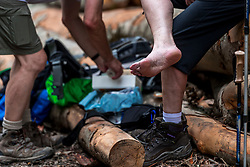 28-05-2018 ESP: We hike to change diabetes day 3, Zubiri<br /> Route van Roncesvalles naar Zubiri / item schoenen blaren medische behandeling