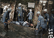 """Colorized photographs soldiers from the World War One<br /> <br /> With his impressive colorized photographs of the World War One, Frédéric Duriez gives us a new look at the conflict that ravaged the world between 1914 and 1918, revealing the difficult daily life of the French soldiers. <br /> <br /> Photo Shows: """"Slope Southeast - Shelter MF3 - Arrival of a wounded to the aid station.<br /> ©Frédéric Duriez/Exclusivepix Media"""