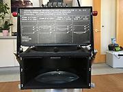 Omega D2 Enlarger - condenser details.
