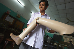 In the COPE rehabilitation and prosthetics centre Philavong Tongsee prepares  a new limb so that it exactly fits the wearer. The centre assists many people who have lost limbs due to UXO accidents. Pakse, Lao PDR.