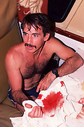 photographer Doug Perrine after 1988 attack by Caribbean reef shark, Carcharhinus perezi, Bahamas ( Western Atlantic Ocean )