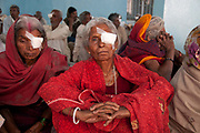 Bihar India March 2011. Akhand Jyoti Eye hospital, Mastichak. Patients the morning after their  cataract operation.