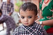 A young Nepalese child sits in a waiting area of the Friends of Needy Children Nutritional Rehabilitation Centre, Kathmandu, Nepal.  The child is an inpatient at the centre and receiving intensive treatment for malnutrition. The centre has recently been built to provide healthcare to malnourished children and education to mothers about nutrition and childcare.