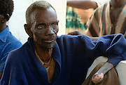 Patient suffering from leprosy attending a clinic in The Gambia