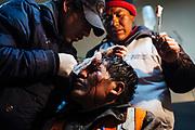 Un minero es atendido por una lesión en la cabeza al recibir un golpe con una botella durante una pelea en La Rinconada, Perú, 2012.<br /> La Rinconada es una ciudad sin ley, todos los días los médicos de la ciudad atienden a personas que han sufrido heridas por robos o por violencia generada por el excesivo consumo de alcohol.