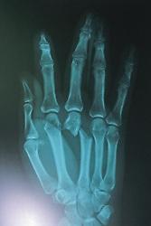 X-Ray Of Kris Timmerman's Hand Bitten By Black Bear