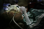 Qamar, a 26-year-old tuberculosis patient, stops breathing after suffering from postpartum complications for almost two weeks at Faizabad Provincial Hospital, Faizabad in Badakshan province, Afghanistan, Sunday, May 20, 2007.