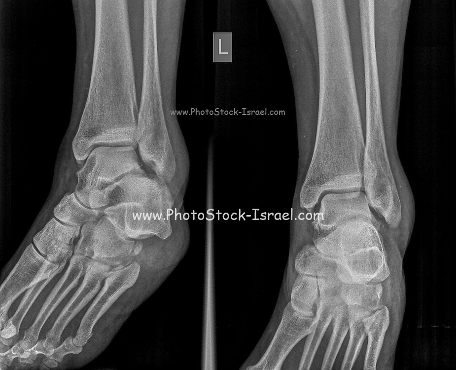 X-ray of a left ankle of a 53 year old female patient with a fractured Medial Malleolus Front view