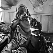 42-year-old Khamilo gives oral rehydration to her 4 year malnutrioned son, Mowlit at the stabilization ward of the GIZ Main Hospital in the Dadaab refugee camp in northeastern Kenya. Photo: Sanjit Das/Panos