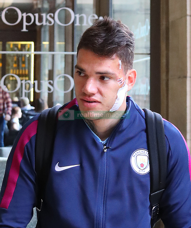 Manchester City goalkeeper Ederson arrives back at his city centre hotel on Saturday afternoon with a huge dressing on his face where Liverpools Sadio Mane raked his studs before getting sent off.