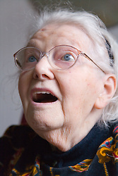 Woman with Alzheimer's disease looking surprised,