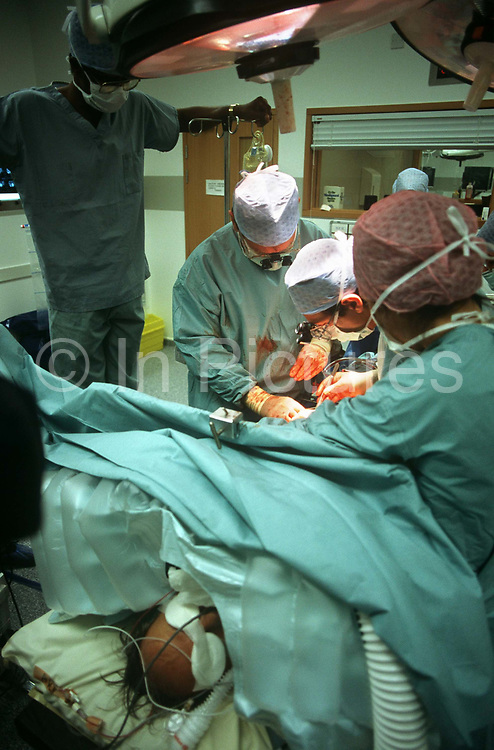 Surgeons perform an operation during a procedure at the private Health Care International hospital. With great care, two surgeons work intensely wearing hygienic facemasks and perform their intricate work carefully. This hospital delivered only high-end medicine to foreign patients and telemedicine was popular in the 90s when a growing awareness of the potential benefits of advanced medicine, emerging democracies, growing middle classes and an ageing population worldwide established locations like this in Scotland. But they were expensive to build and run and this hospital at Clydebank of up to 500 beds catered primarily for foreigners who flew into Glasgow airport, was built with the assistance of £30 million of public money, went into receivership when its target of overseas business was slower to build-up impacting its cash flows.