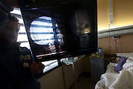 A man holds up an  x-ray showing the bullet in the head of the wounded protester lying in bed in a hospital in Banghazi on Feb. 26, 2011.