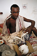 """A teenage shelling victim in a """"Villa Hospital"""", a private home turned into a hospital in the north sector (Ali Mahdi controlled sector), in Mogadishu, war-torn capital of Somalia where 30,000 died between November 1991 and March 1992. March 1992."""