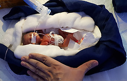 "By Dinesh Dubey in India A newborn baby weighing just 400 grams has survived after her premature birth and gained normalcy after completing a six-month-long clinical course, with her parents and doctors having struggled hard to keep her alive and healthy. The girl was discharged from the hospital in Udaipur on Thursday. Neonatologist Sunil Janged, who led a team of doctors and nursing staff for ensuring the girl's incredible survival, claimed that she was the smallest newborn baby to survive in India and South Asia. The last reported such survival was a baby, Rajni, weighing 450 grams, at Mohali in 2012. The girl, named Manushi by the nursing staff of Vivanta Children's Hospital, was born to a couple married for 35 years. When her mother's blood pressure became uncontrollable halfway through her pregnancy and the ultrasonography revealed absence of blood flow to the foetus, a caesarean section was conducted on her on June 15, 2017. Baby Seeta is the smallest baby ever to survive not in India but also in South Asia. Doctors calls her ""our miracle baby"", saying: ""She's just fought and fought and fought against all the odds. But she's made it."" Born to a couple married for 35 years, when her blood pressure was uncontrollable halfway through her pregnancy and the ultrasonography revealed fetoplacental insufficiency [ absent blood flow to fetus. So she was taken up for emergency caesarean section on June 15,2017. Baby Seeta weighed just 400 grams and measured just 8.6 inches when she was born, her minuscule feet only slightly bigger than a fingernail. She was not breathing when she was born. But the couple decided to fight to keep her alive. ""When the baby was born, we were uncertain of what could happen,"" Dr Sunil Janged, Chief Neonatologist said. The baby required artificial breathing support to regularize her breathing and then she was quickly transferred to Jivanta neonatal ICU. The baby was managed & looked after at Jivanta Neonatal ICU under precise care"