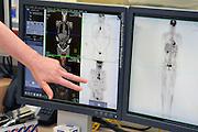 Nederland, Nijmegen,2-2-2013Een laborant wijst op een beeldscherm met daarop het gescande lichaam van een patient met veel uitzaaiingen van kankercellen.Foto: Flip Franssen