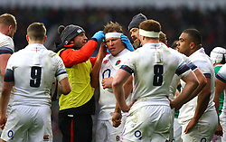 England's Dylan Hartley (centre) has a bandage applied during the NatWest 6 Nations match at Twickenham Stadium, London.