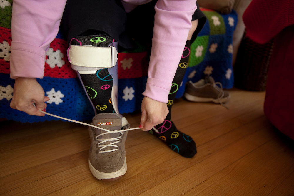 Mary Beth Solinski, a 59 year old, with Down Syndrome, ties her shoe, exposing a special leg brace she needs...Aging adults with Down Syndrome. In 1983, people with Down syndrome could expect to live to age 25. Today, their life expectancy is 60 years. We interview a 59-year-old patient who has outlived her parents and is now in AARP. She has trouble walking, but has lots of interests, such as cooking, arts and crafts and reading.