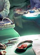 Nederland, Nijmegen, 9-1-2008Chirurgen werken aan een donornier die zojuist d.m.v. laproscopie, een kijkoperatie, bij een patient is uitgenomen, en vervolgens bij een familielid zal worden ingebracht. Foto: Flip Franssen