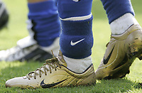 BIRMINGHAM CITY vs SPURS                               02/04/2005<br /> CITY'S JERMAINE PENNANT WITH ANKLE BAND
