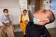 03 MARCH 2104 - MAE KASA, TAK, THAILAND: A man swallows his pills for treatment of drug resistant tuberculosis while other patients, including a Buddhist monk, wait for their medications at the Sanatorium Center for Border Communities in Mae Kasa, about 30 minutes north of Mae Sot, Thailand. The Sanatorium provides treatment and housing for people with tuberculosis in an isolated setting for about 68 patients, all Burmese. The clinic is operated by the Shoklo Malaria Research Unit and works with several other NGOs that assist Burmese people in Thailand. Reforms in Myanmar have alllowed NGOs to operate in Myanmar, as a result many NGOs are shifting resources to operations in Myanmar, leaving Burmese migrants and refugees in Thailand vulnerable. Funding cuts could jeopardize programs at the clinic. TB is a serious health challenge in Burma, which has one of the highest rates of TB in the world. The TB rate in Thailand is ¼ to ⅕ the rate in Burma.        PHOTO BY JACK KURTZ