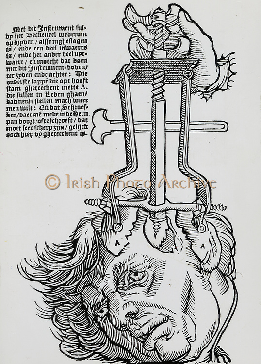 Trephination: elevator for removing fragments of broken skull. Woodcut from a book on field surgery, 1593.