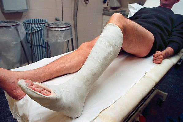 Nederland, Nijmegen, 15-2-2008Man in gipskamer van de seh van het umc radboud met een gebroken been in het gips.Foto: Flip Franssen