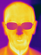 A Thermogram of an elderly man.  The different colors represent different temperatures on the object. The lightest colors are the hottest temperatures, while the darker colors represent a cooler temperature.  Thermography uses special cameras that can detect light in the far-infrared range of the electromagnetic spectrum (900?14,000 nanometers or 0.9?14 µm) and creates an  image of the objects temperature..